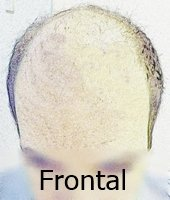 Frontal